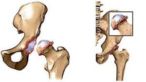 Osteopathie - versleten heup