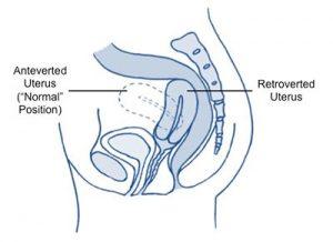 Hoofdpijn baarmoeder en osteopathie