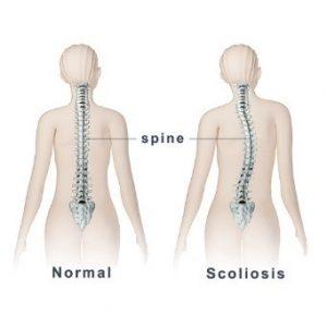 Scoliose en osteopathie