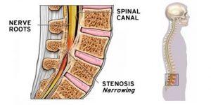 Kanaalstenose osteopathie